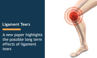 Ligament Tears - Blog by Wiener & Lambka Personal Injury Attorneys